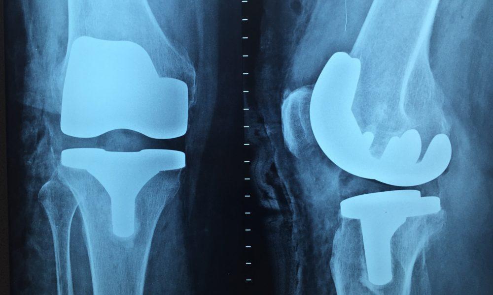 Najlepszy sposób na diagnozę to artroskopia kostki.