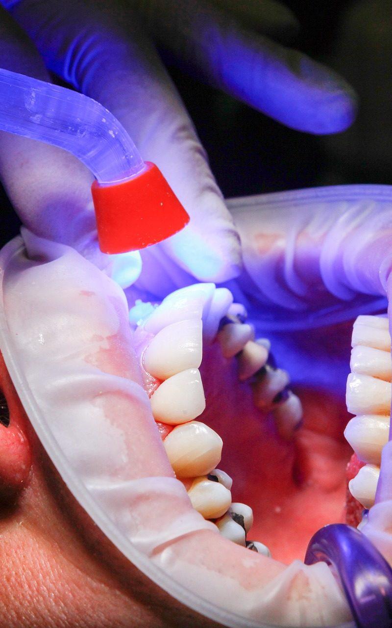 Zła droga odżywiania się to większe ubytki w jamie ustnej a dodatkowo ich utratę